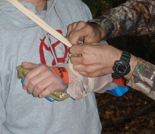 Survival First Aid: 5 Mistakes To Avoid When Making A Splint