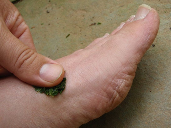 How to Mend Your Feet, With Wild Medicine