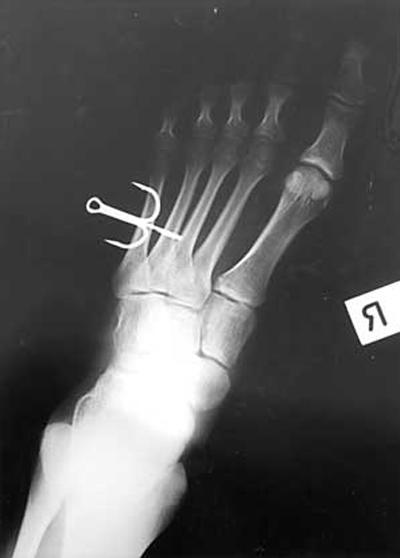 fish hook x-ray
