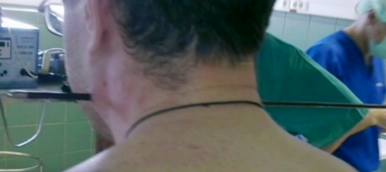 Russian Man Shot Through the Neck with Arrow, Survives (Graphic Image Warning)