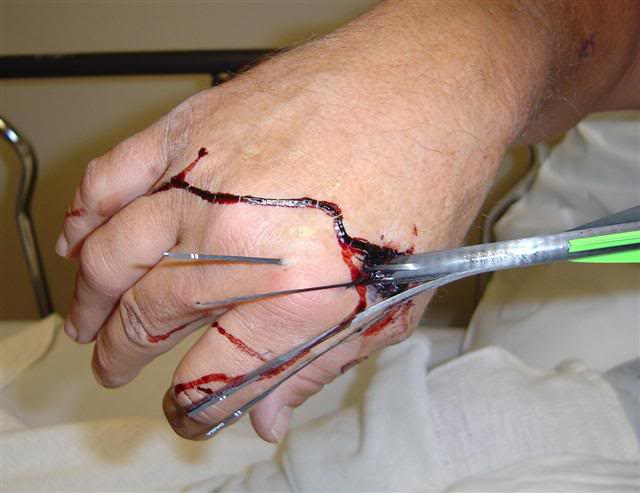 Protect Your Hands, Flex Your Arrows (Graphic Image Warning)