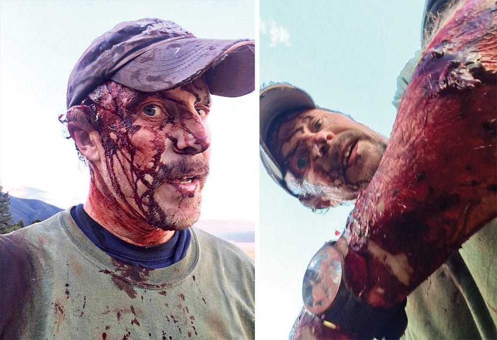 Todd Orr Grizzly Bear attack wounds