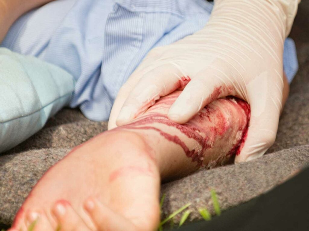 Treating a bloody injury