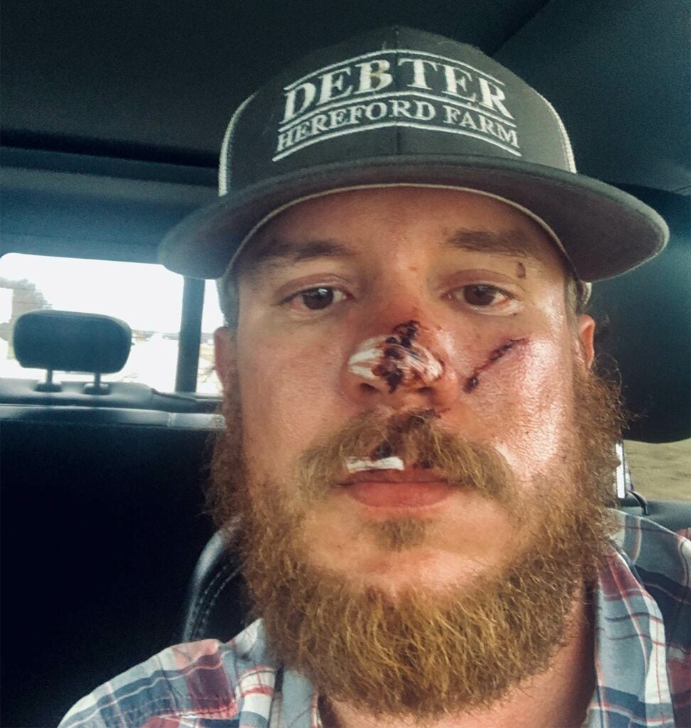 A hunter with panther injuries.