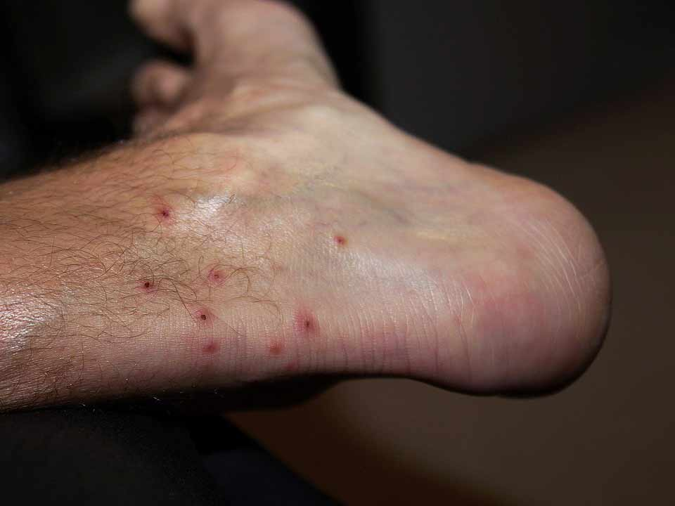 A foot showing several chigger bites.