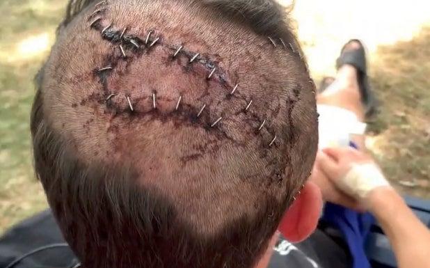 Heim's injured head.