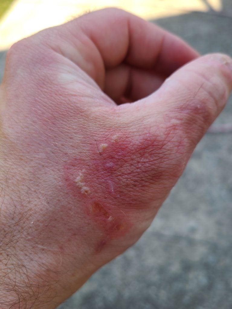 Ringworm is a common fungal infection hunters can contract from wildlife.