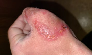 I Got This Nasty, Flesh-Eating Fungal Infection from a Coyote