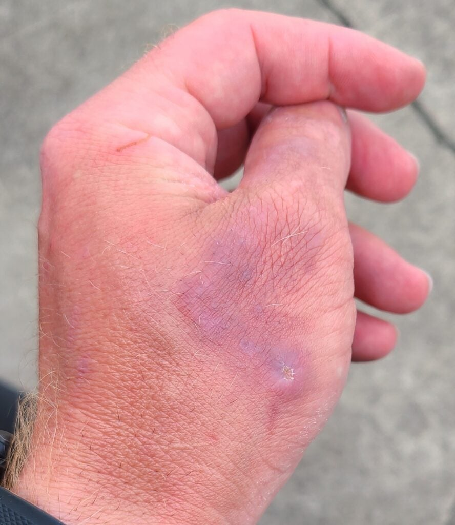 Healed ringworm on a coyote hunter's hand.
